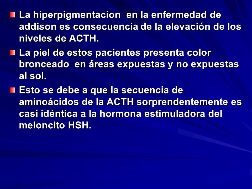 La hiperpigmentacion en la enfermedad de addison es consecuencia de la elevación de los niveles de ACTH.