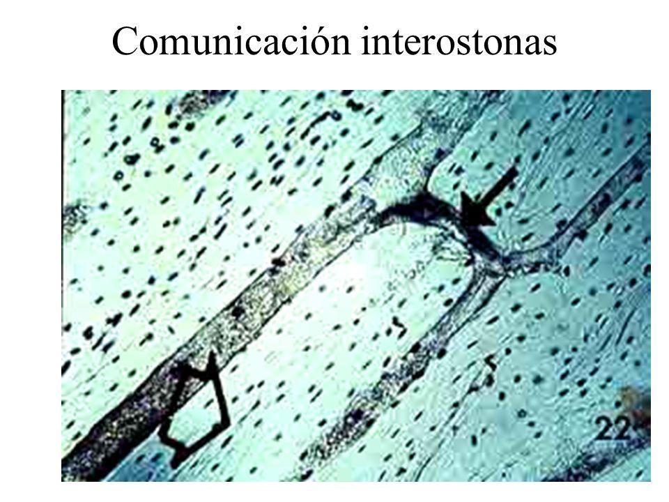 Comunicación interostonas