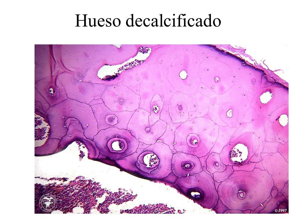 Hueso decalcificado