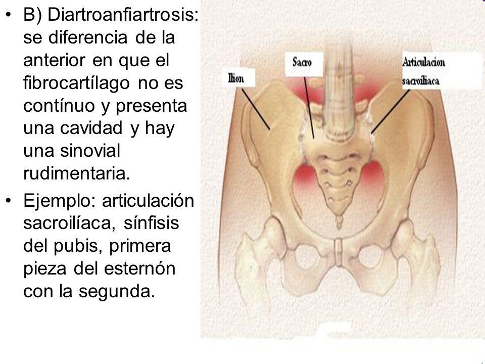 B) Diartroanfiartrosis: se diferencia de la anterior en que el fibrocartílago no es contínuo y presenta una cavidad y hay una sinovial rudimentaria.