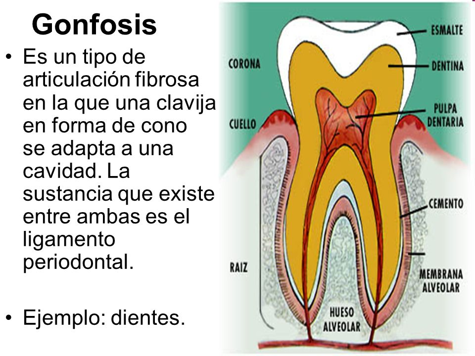Gonfosis
