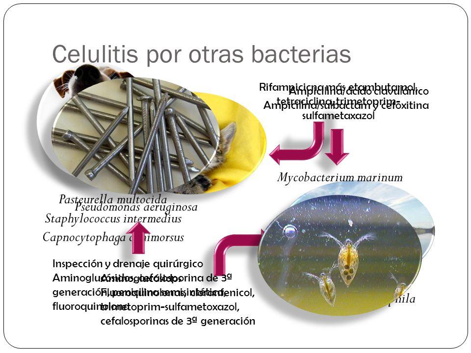 Celulitis por otras bacterias