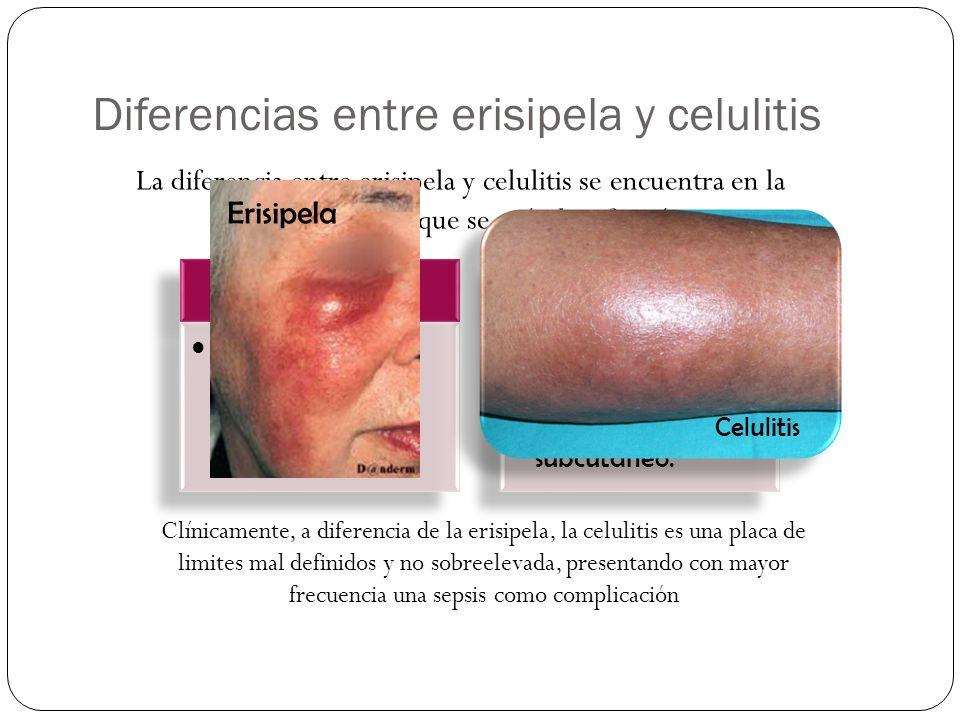 Diferencias entre erisipela y celulitis