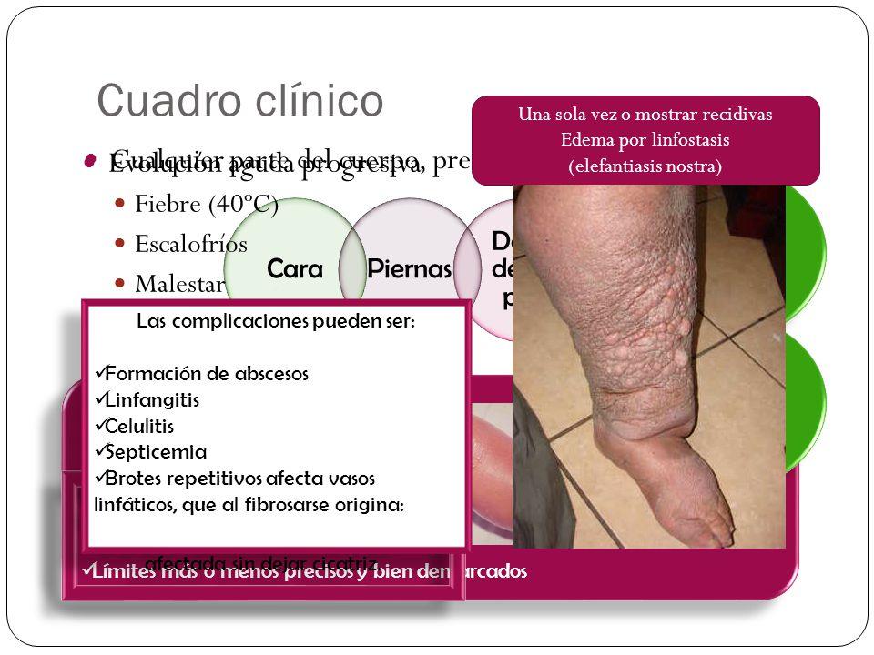 Cuadro clínico Cualquier parte del cuerpo, predominio en: