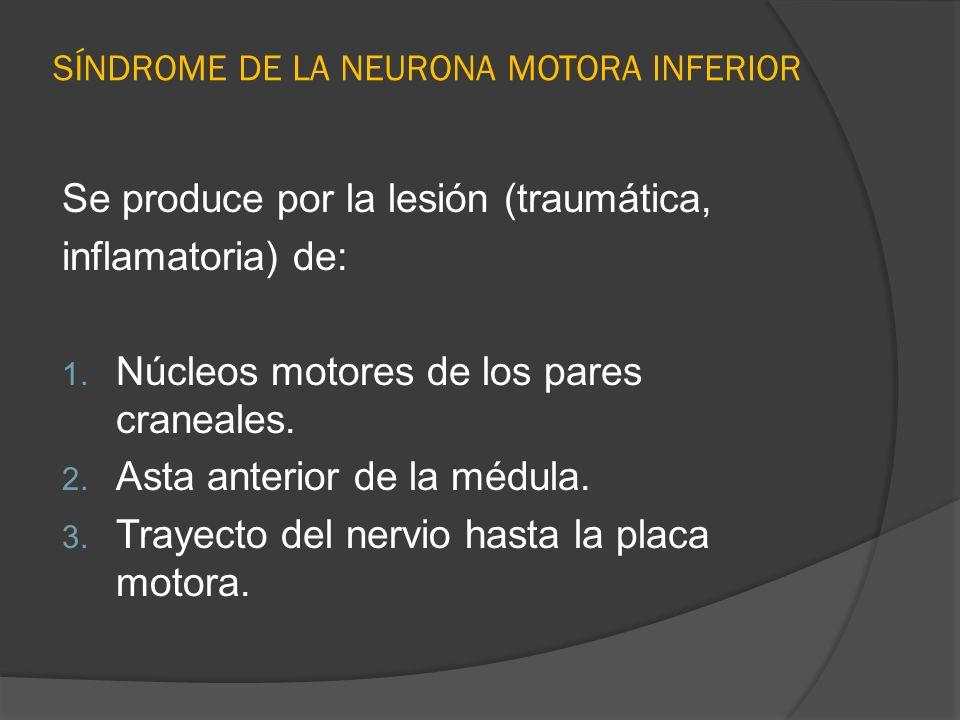 SÍNDROME DE LA NEURONA MOTORA INFERIOR