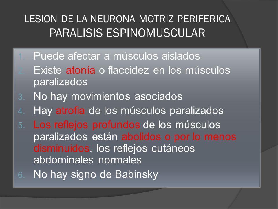 LESION DE LA NEURONA MOTRIZ PERIFERICA PARALISIS ESPINOMUSCULAR
