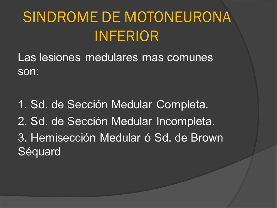 SINDROME DE MOTONEURONA INFERIOR