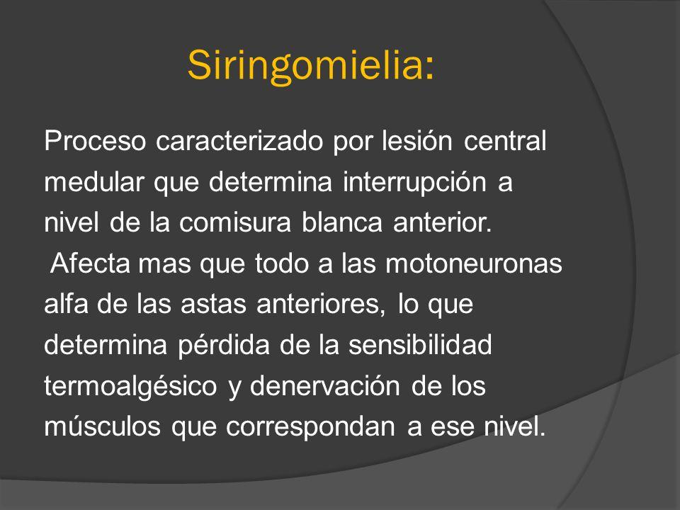 Siringomielia: