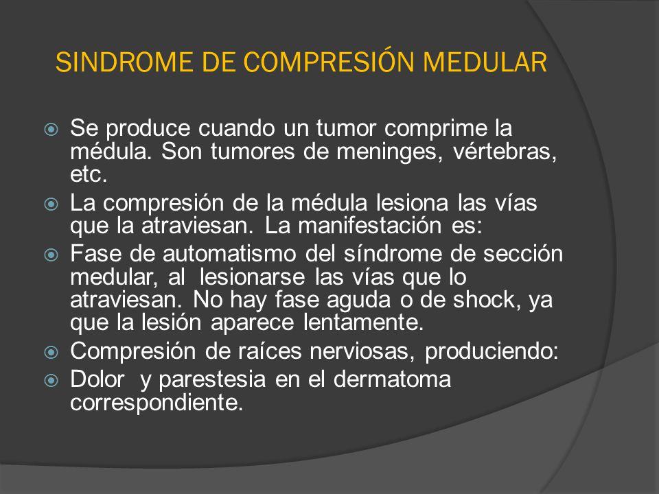SINDROME DE COMPRESIÓN MEDULAR