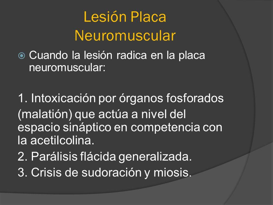 Lesión Placa Neuromuscular