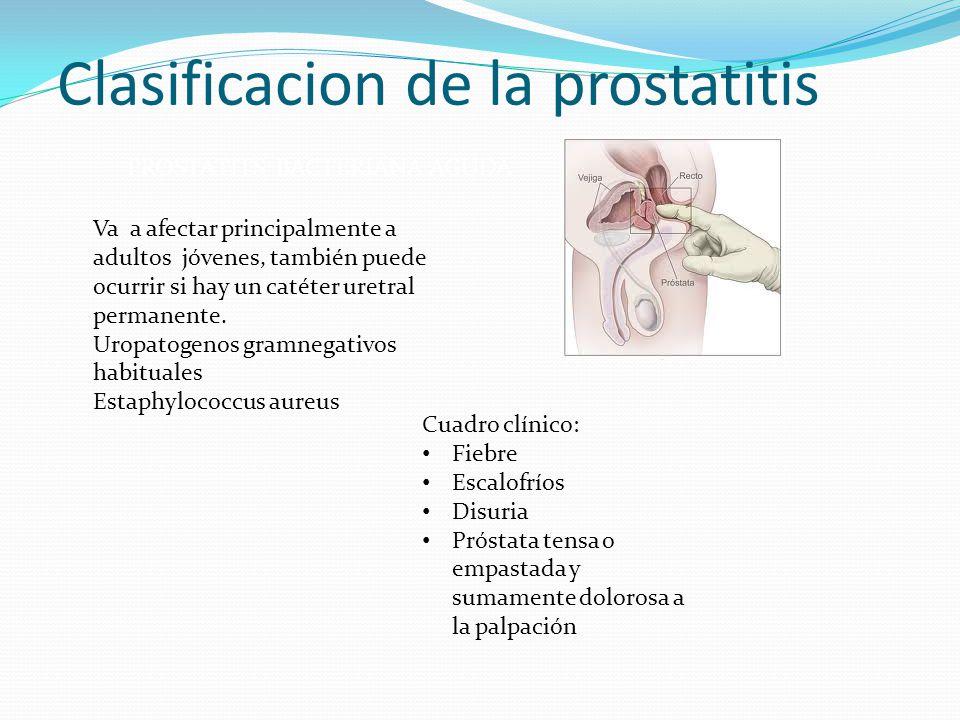 Clasificacion de la prostatitis