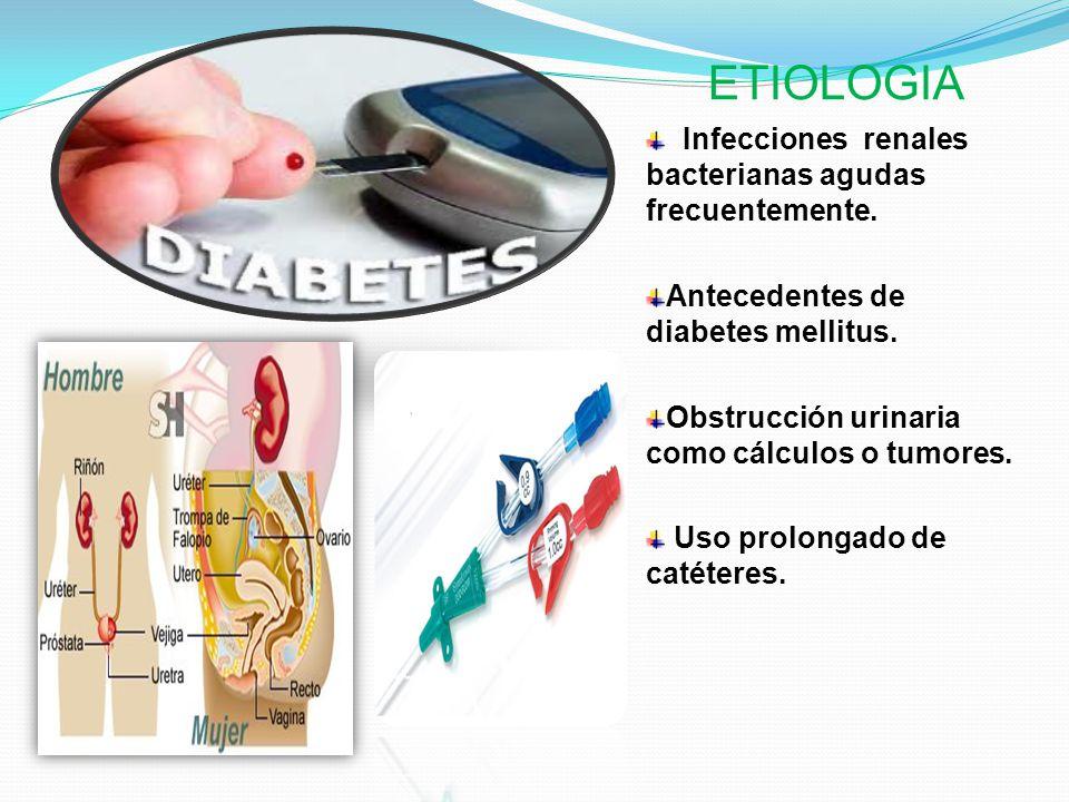 ETIOLOGIA Infecciones renales bacterianas agudas frecuentemente.