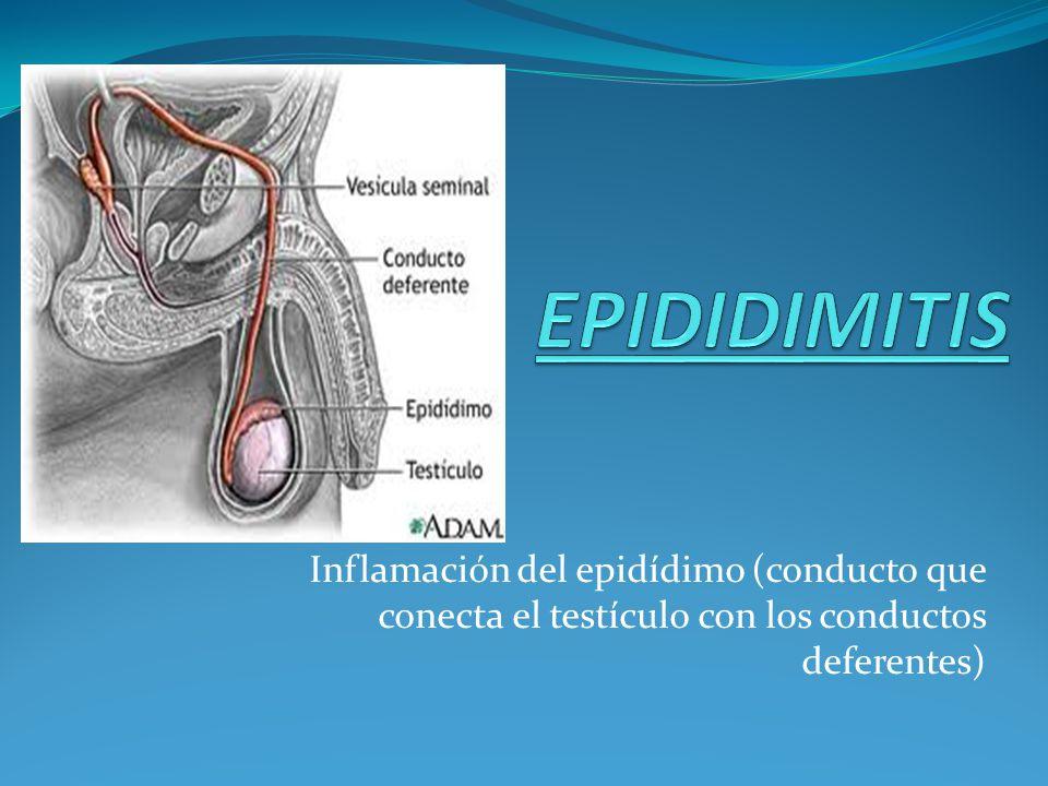 EPIDIDIMITIS Inflamación del epidídimo (conducto que conecta el testículo con los conductos deferentes)