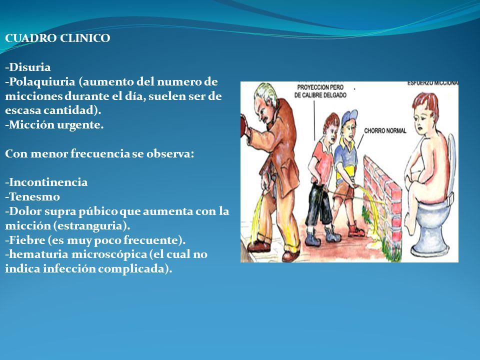 CUADRO CLINICO -Disuria. -Polaquiuria (aumento del numero de micciones durante el día, suelen ser de escasa cantidad).