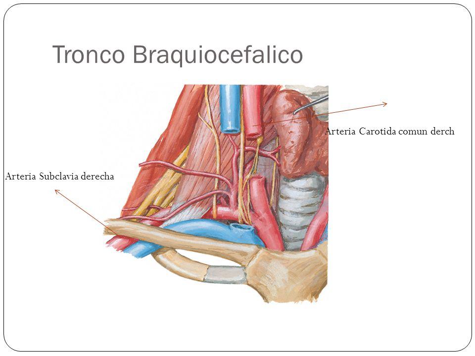 Tronco Braquiocefalico