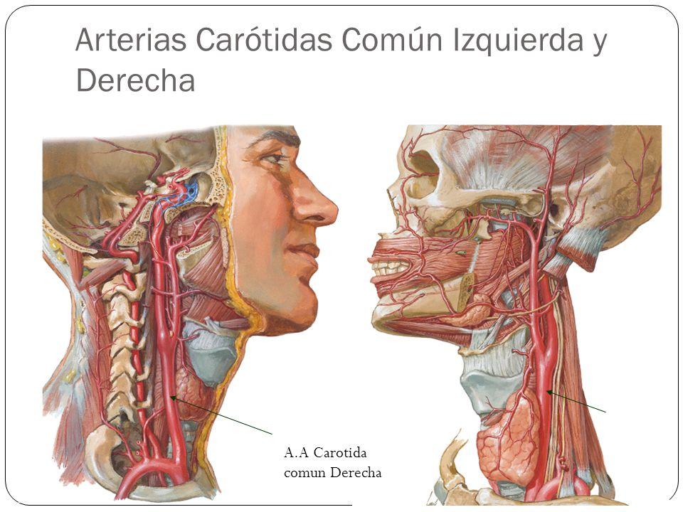 Arterias Carótidas Común Izquierda y Derecha