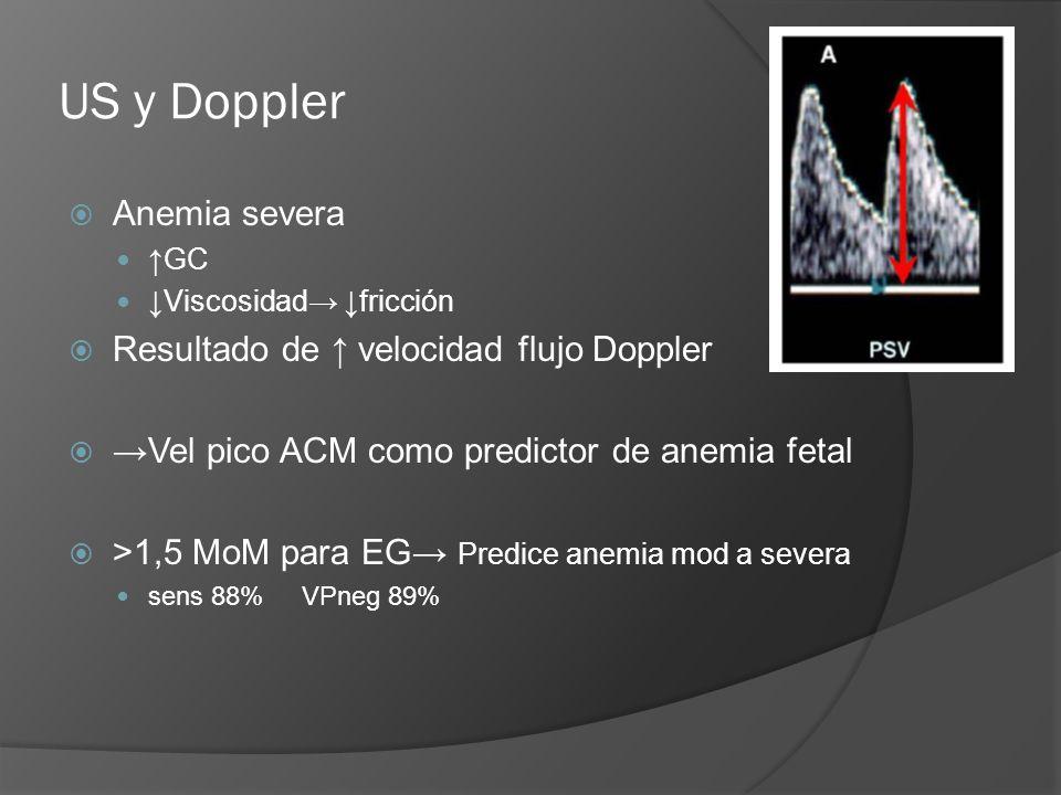 US y Doppler Anemia severa Resultado de ↑ velocidad flujo Doppler