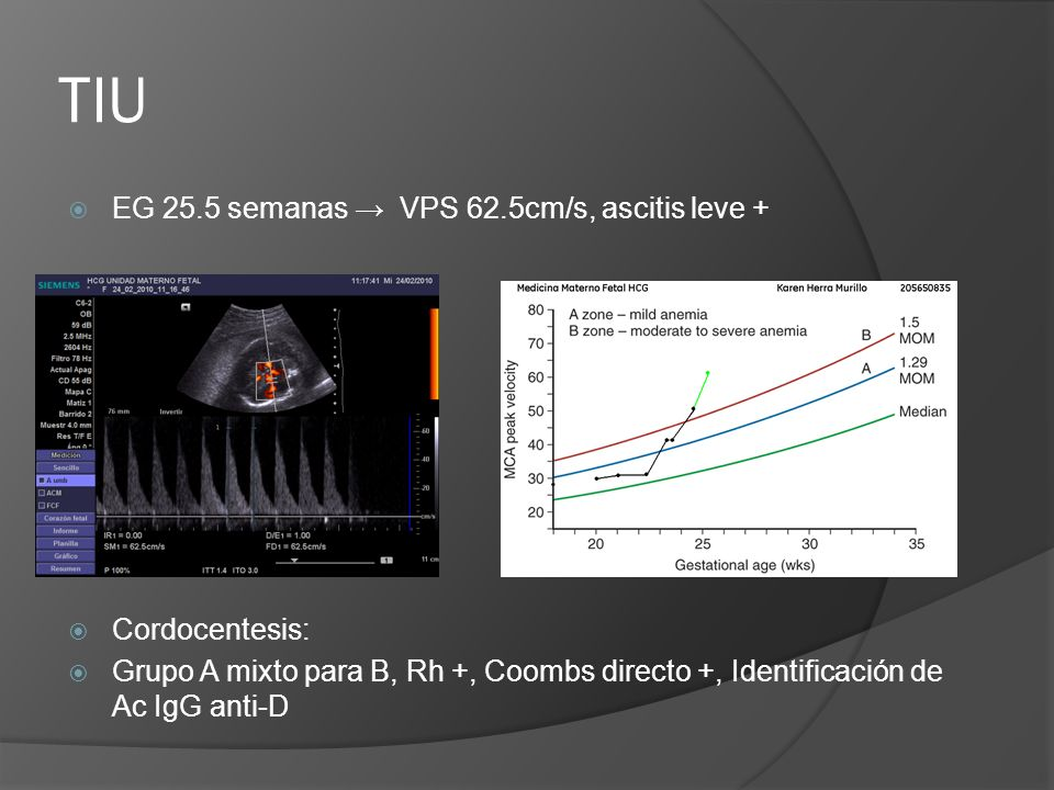 TIU EG 25.5 semanas → VPS 62.5cm/s, ascitis leve + Cordocentesis: