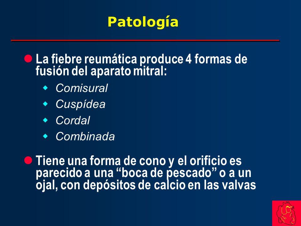 La fiebre reumática produce 4 formas de fusión del aparato mitral: