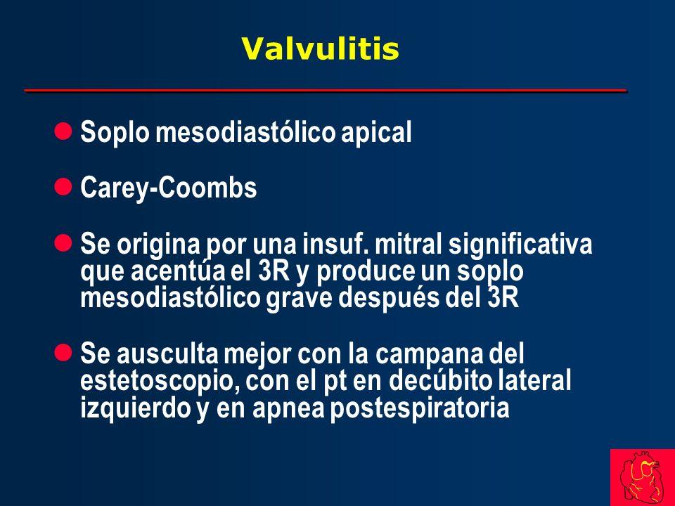 Valvulitis Soplo mesodiastólico apical. Carey-Coombs.