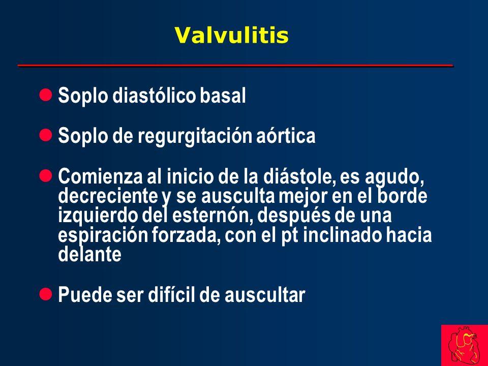 Valvulitis Soplo diastólico basal. Soplo de regurgitación aórtica.