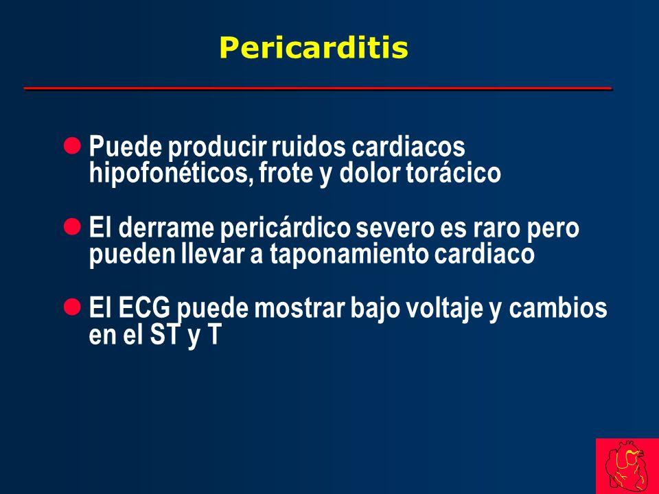 PericarditisPuede producir ruidos cardiacos hipofonéticos, frote y dolor torácico.
