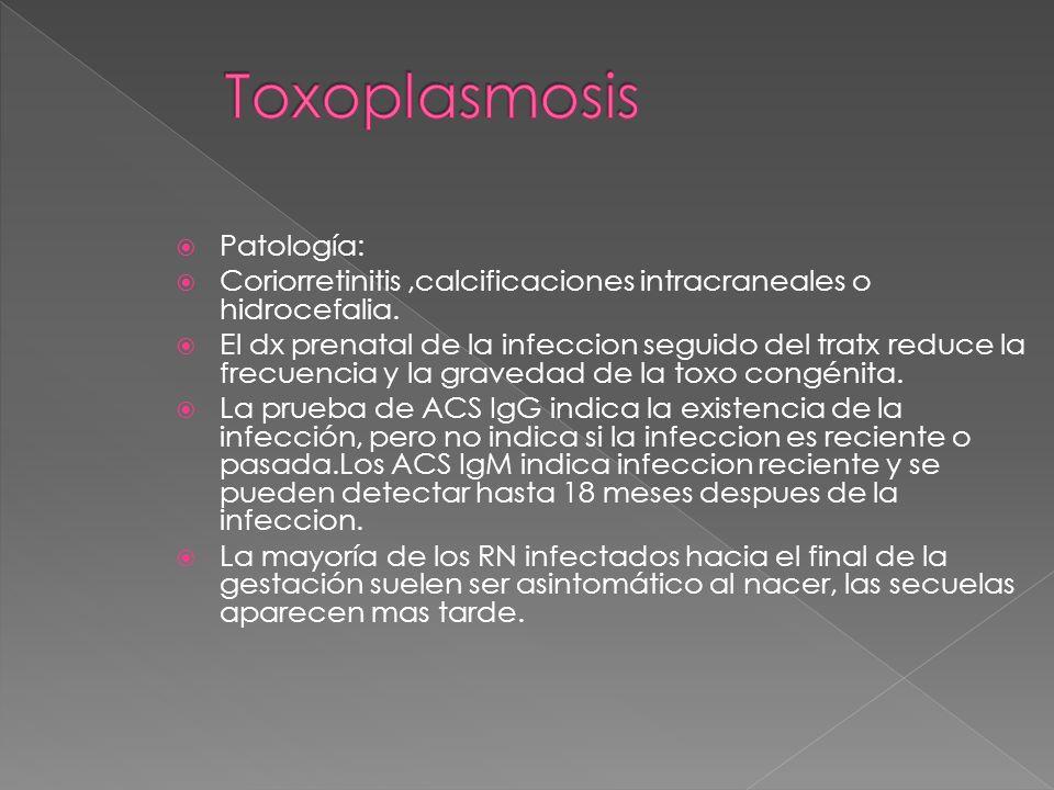 Toxoplasmosis Patología: