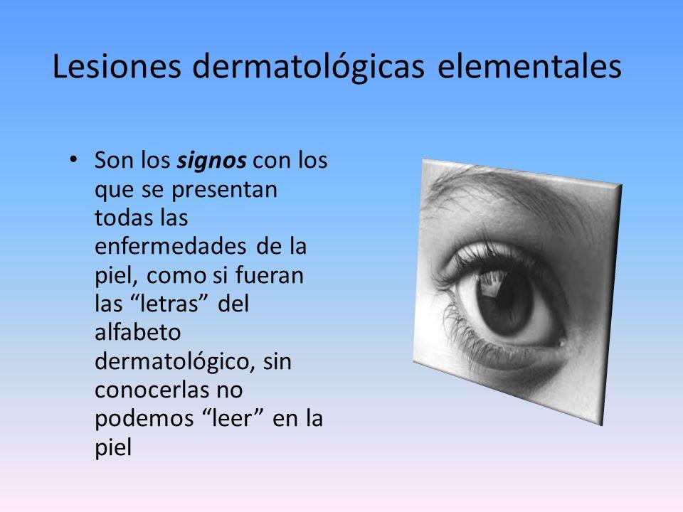 Lesiones dermatológicas elementales