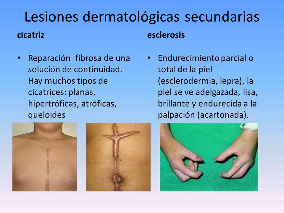 Lesiones dermatológicas secundarias