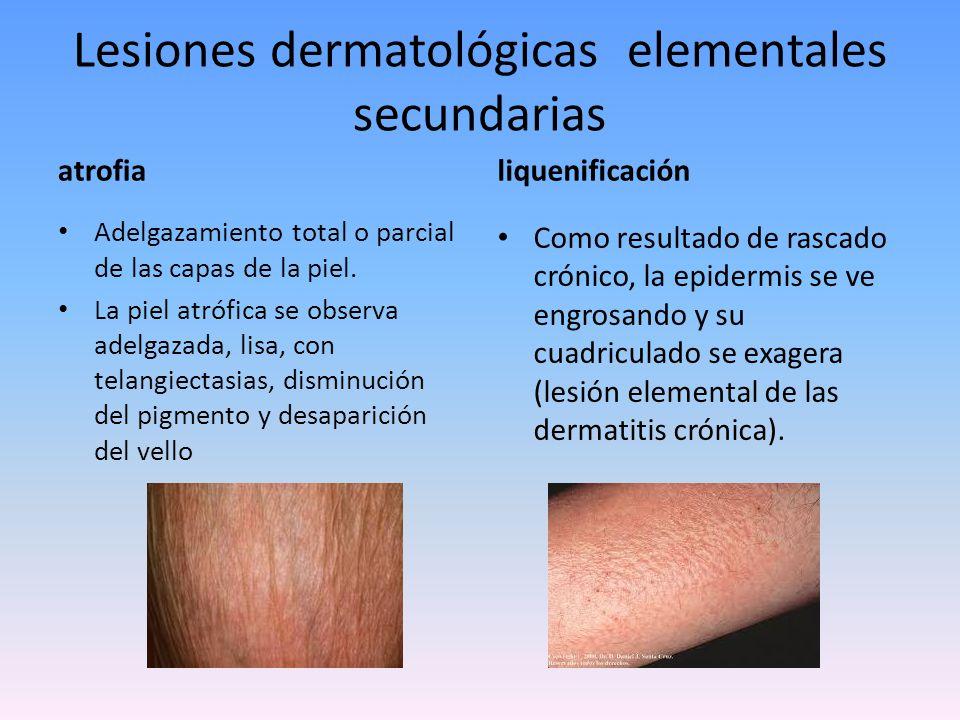 Lesiones dermatológicas elementales secundarias