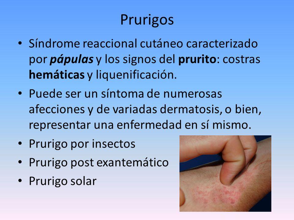 Prurigos Síndrome reaccional cutáneo caracterizado por pápulas y los signos del prurito: costras hemáticas y liquenificación.