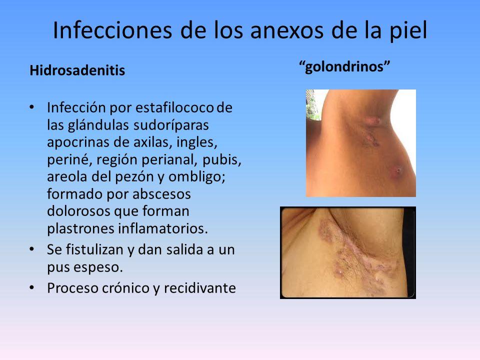 Infecciones de los anexos de la piel