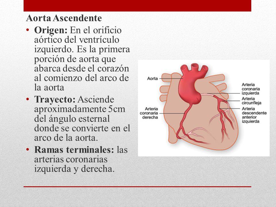 Aorta Ascendente