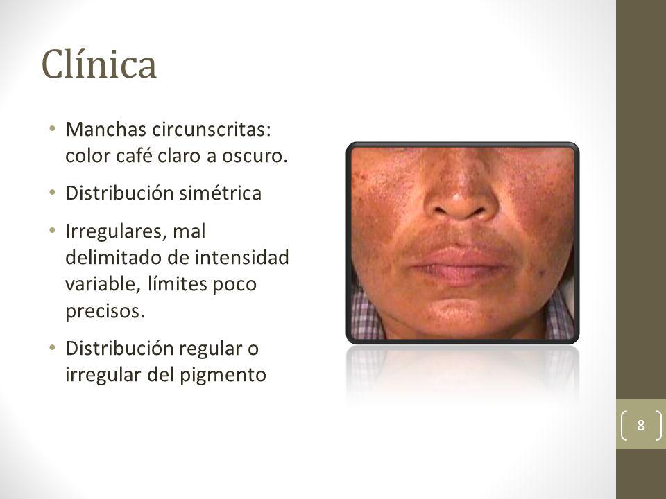 Clínica Manchas circunscritas: color café claro a oscuro.