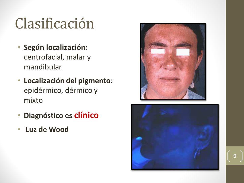 Clasificación Según localización: centrofacial, malar y mandibular.