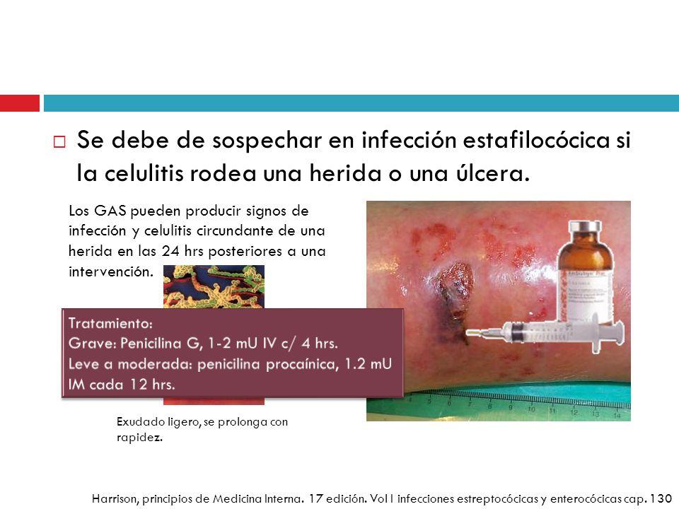 Se debe de sospechar en infección estafilocócica si la celulitis rodea una herida o una úlcera.