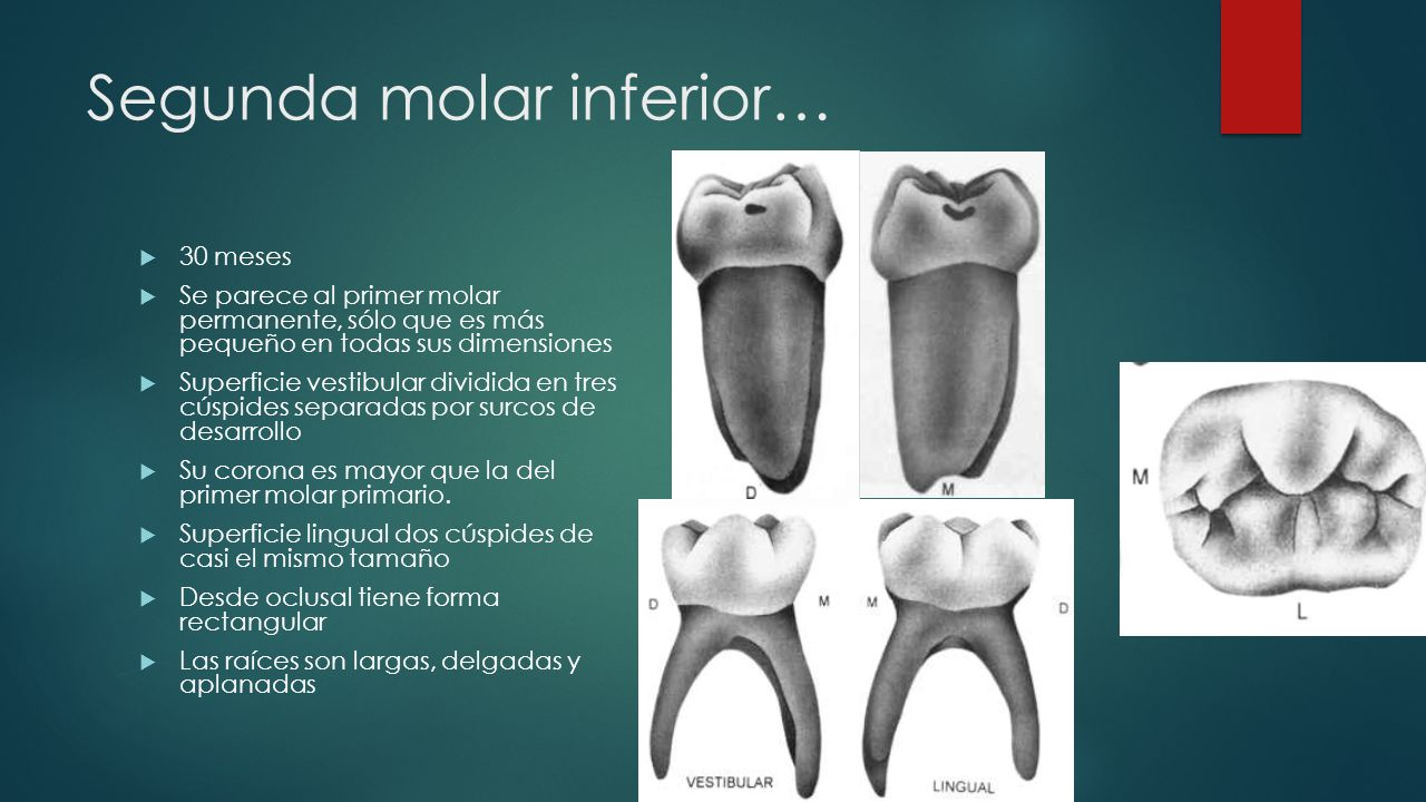 Segunda molar inferior…