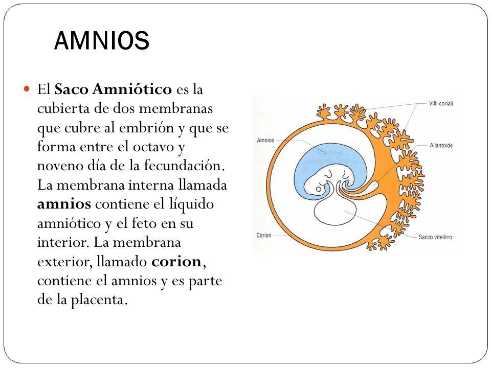 AMNIOS