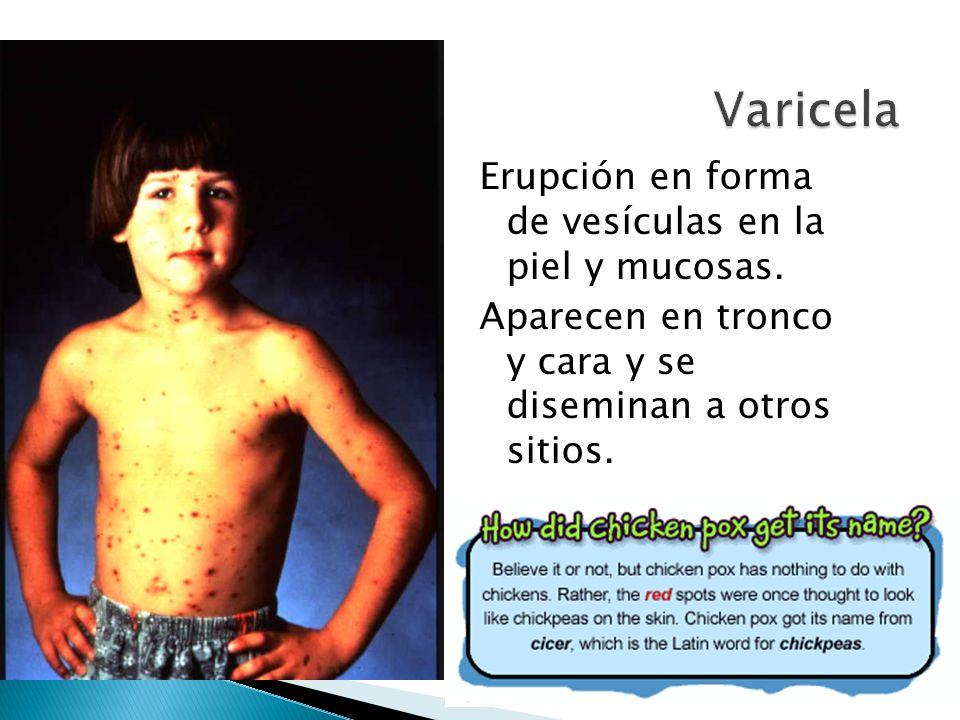 Varicela Erupción en forma de vesículas en la piel y mucosas.