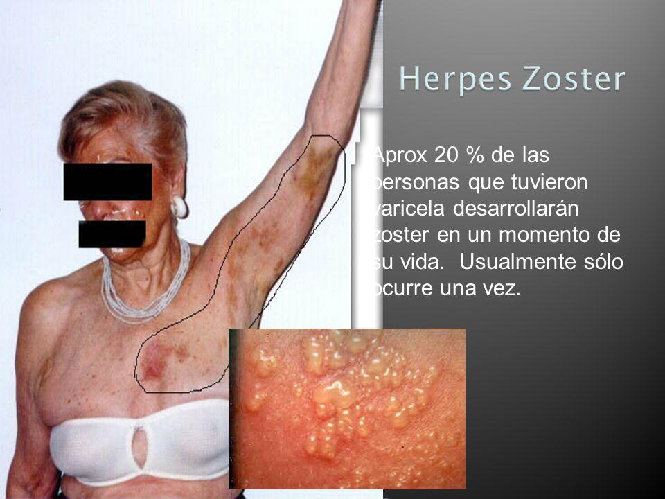 Herpes Zoster Aprox 20 % de las personas que tuvieron varicela desarrollarán zoster en un momento de su vida. Usualmente sólo ocurre una vez.