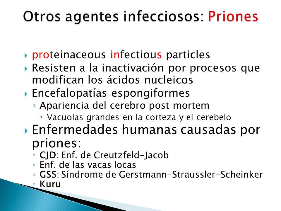 Otros agentes infecciosos: Priones