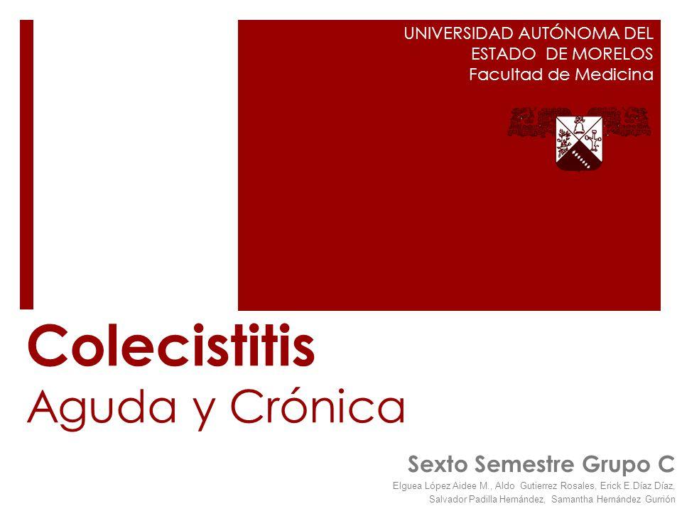 Colecistitis Aguda y Crónica
