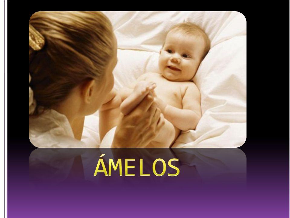 ÁMELOS