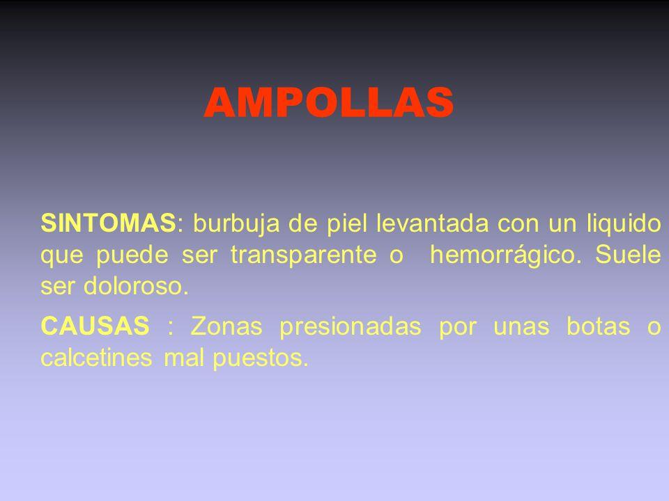 AMPOLLAS SINTOMAS: burbuja de piel levantada con un liquido que puede ser transparente o hemorrágico. Suele ser doloroso.