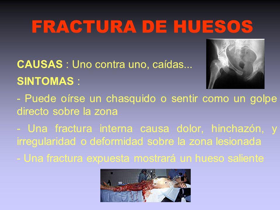 FRACTURA DE HUESOS CAUSAS : Uno contra uno, caídas... SINTOMAS :