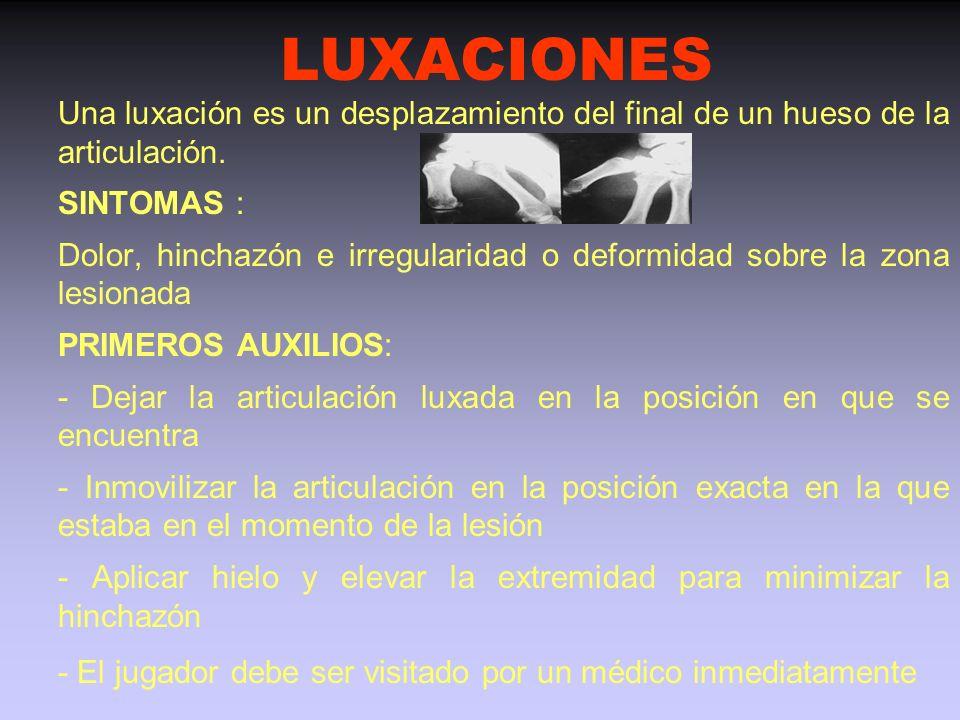 LUXACIONES Una luxación es un desplazamiento del final de un hueso de la articulación. SINTOMAS :