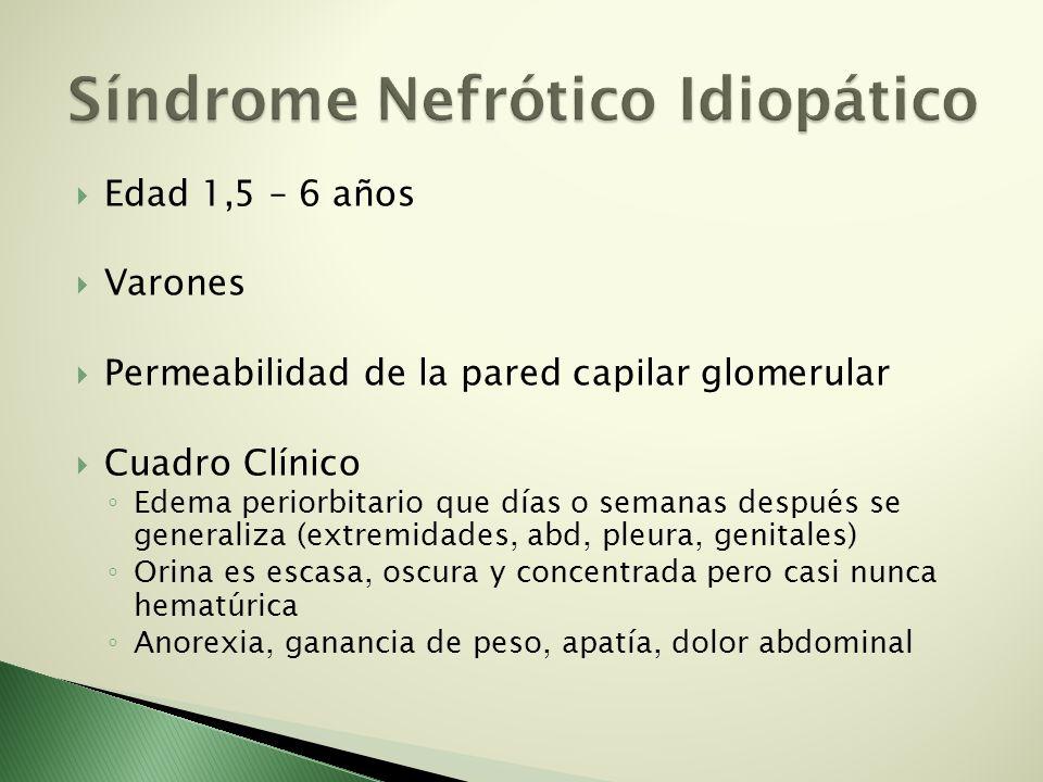 Síndrome Nefrótico Idiopático