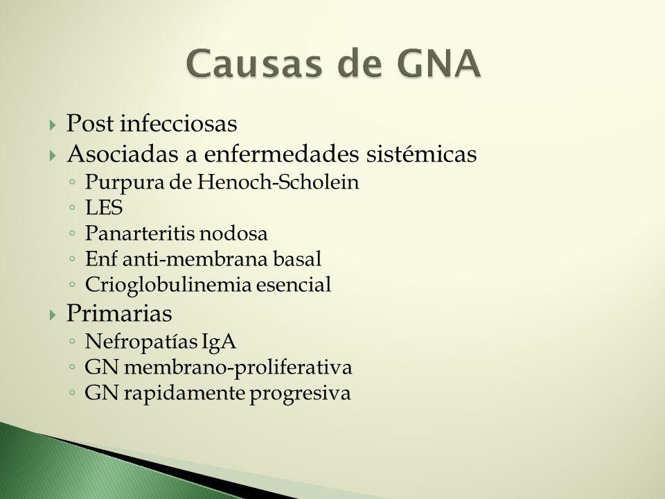 Causas de GNA Post infecciosas Asociadas a enfermedades sistémicas