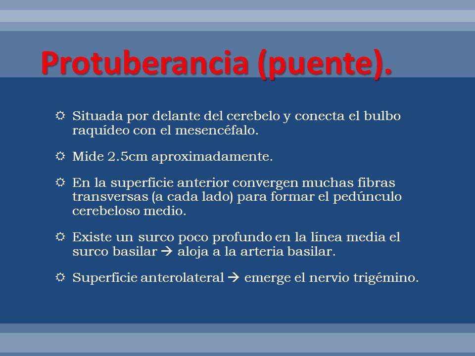Protuberancia (puente).