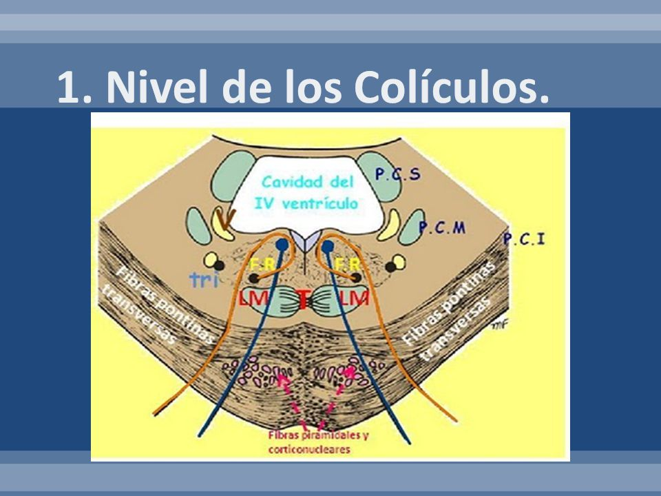 1. Nivel de los Colículos.